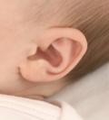 слухопротезирование у детей