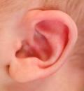 дифференциация нарушений слуха
