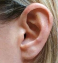 пороки развития уха