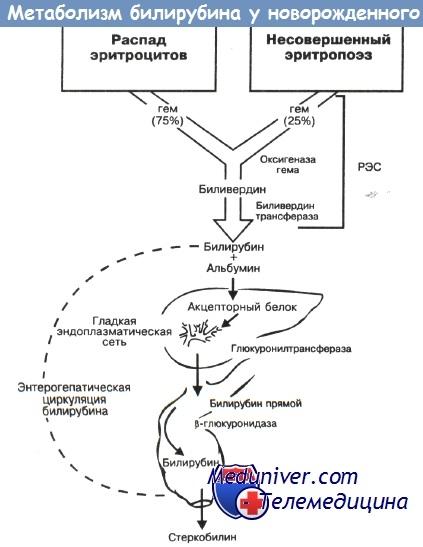 Метаболизм билирубина у новорожденных