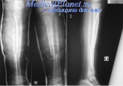 Сопутствующие переломы малоберцовой кости. Открытые переломы ...