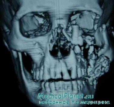 переломы костей лица