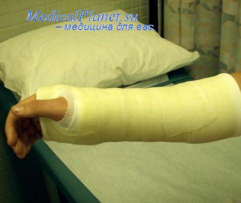 гипсовая повязка при раневой инфекции