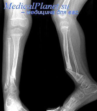 Ложные суставы костей предплечья артрит лктевого сустава
