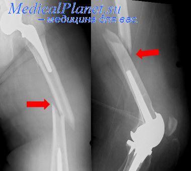 симптомы при трещине в тазобедренном суставе