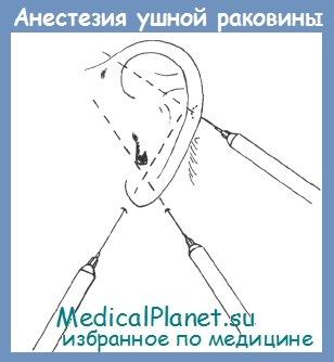 aurikulyarnaya-analgeziya-aurikulyarnaya-analgeziya-aurikulyarnaya-analgeziya