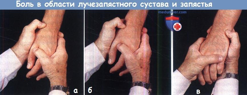 Болят Суставы Больших Пальцев Рук