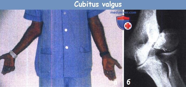 Причины деформации локтевого сустава эндопротезирование коленного сустава в израиле