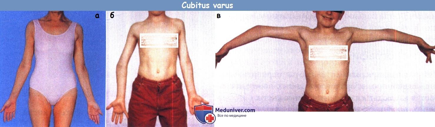 Изображение - Варусная деформация локтевого сустава встречается после cubitus_varus