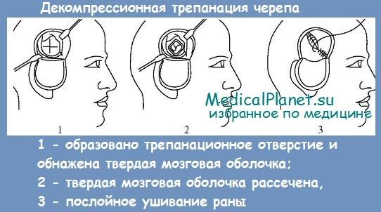 декомпрессионная трепанация черепа