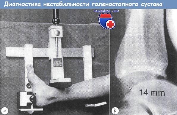 Изображение - Хроническая нестабильность голеностопного сустава diagnostika_nestabilnosti_golenostopnogo_sustava-2