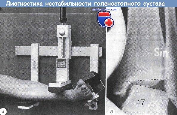 Изображение - Хроническая нестабильность голеностопного сустава diagnostika_nestabilnosti_golenostopnogo_sustava