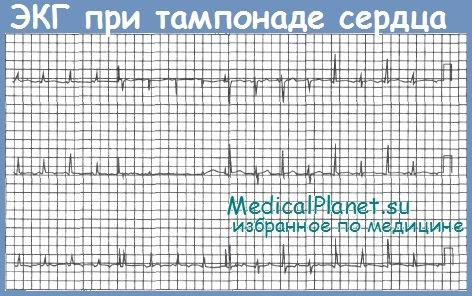 Тампонада сердца - клиника, диагностика, лечение