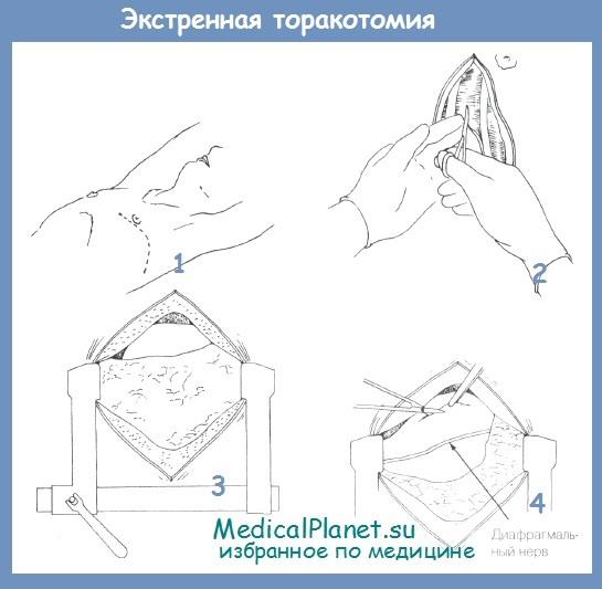 техника экстренной торакотомии