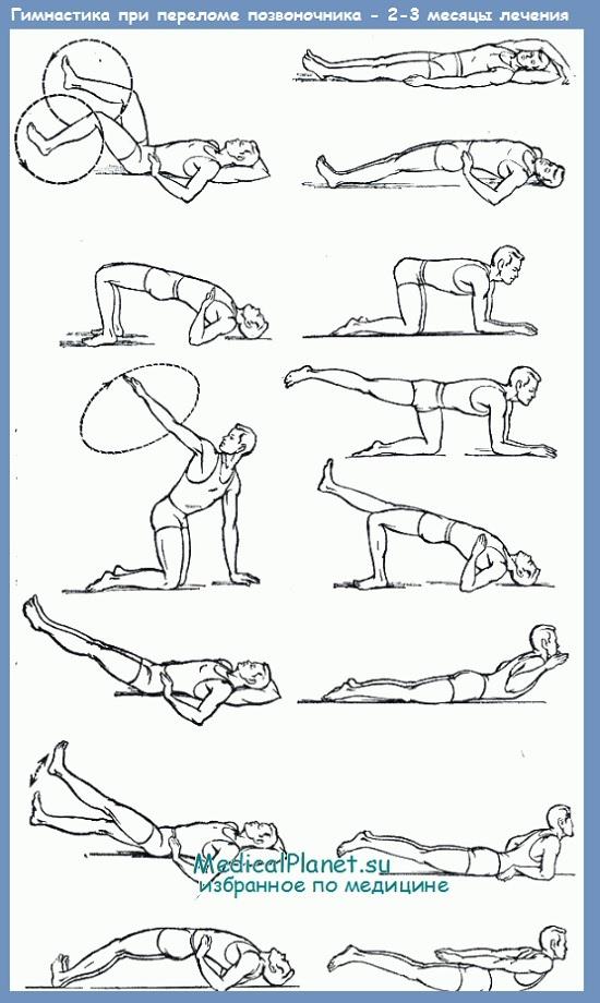 Лечебная гимнастика при переломах позвоночника - техника