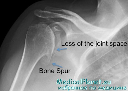 гнойный раневой артрит