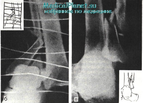 остеоартроз голеностопного сустава 2 степени инвалидность
