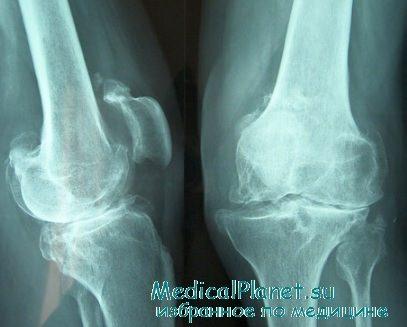 бурсит коленного сустава код мкб 10
