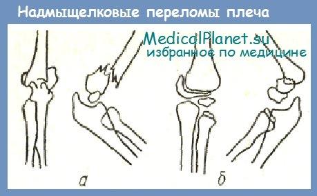 надмыщелковые переломы плечевой кости