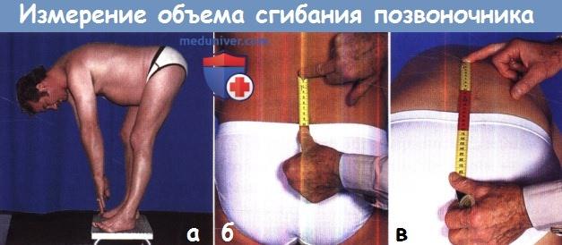 Измерение объема сгибания позвоночника