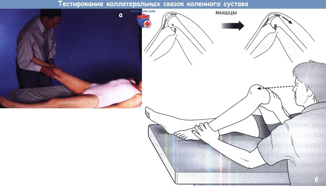 Тестирование коленного сустава тренажёр при больных суставах