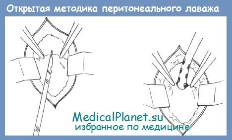 Диагностический перитонеальный лаваж (DPL)