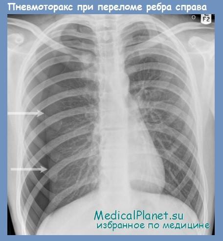 пневмоторакс при переломе ребер