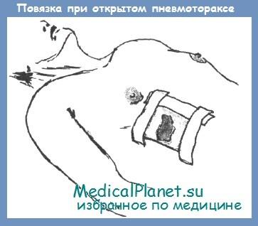 Повязка при открытом пневмотораксе
