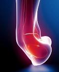 повреждения голеностопного сустава