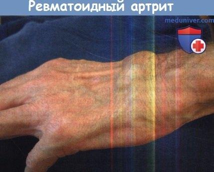 Реактивен и постинфекциозен артрит | Списание МД