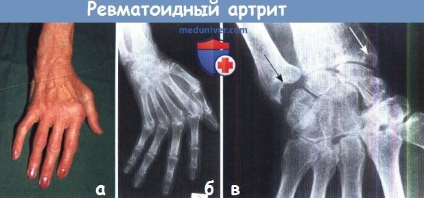 Артрит суставов: признаки, симптомы, лечение. Как лечить артрит