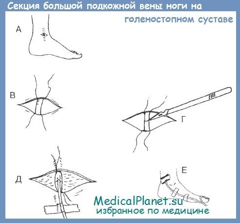 секция большой подкожной вены ноги в области голеностопного сустава