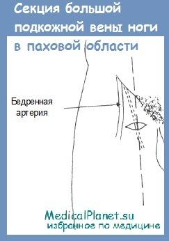 секция большой подкожной вены ноги в паховой области