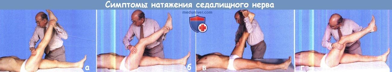 Симптомы натяжения седалищного нерва