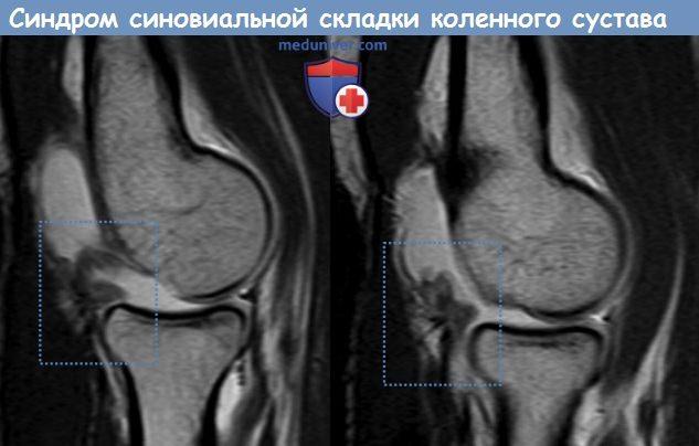 Синдром синовиальной складки коленного сустава
