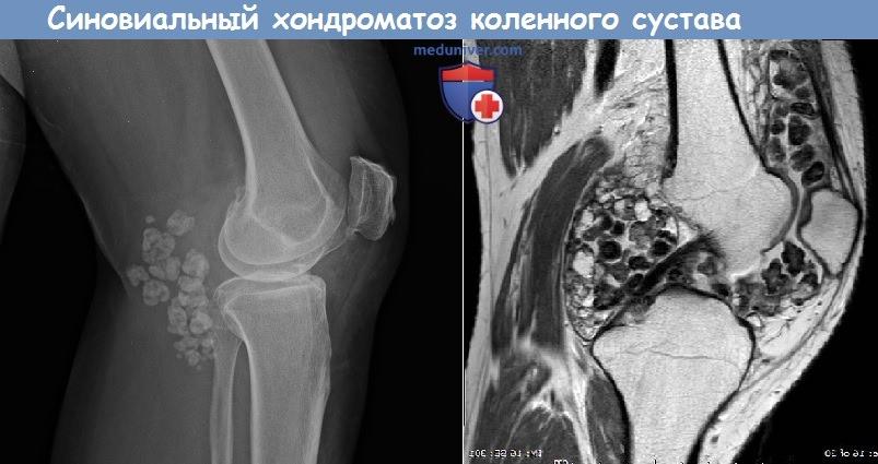 Синовиальный хондроматоз коленного сустава болит сустав правой кисти