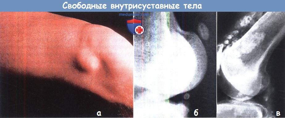 Свободные тела коленного сустава строение и функции локтевого сустава