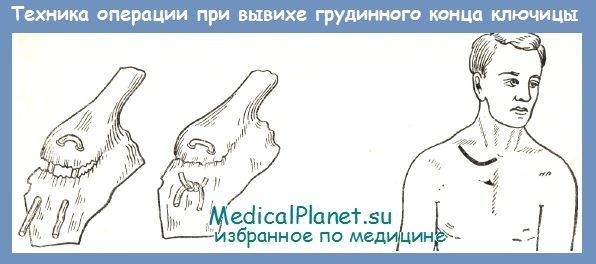 Операция при вывихе грудинного конца ключицы - техника