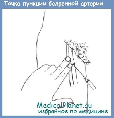 точка пункции бедренной артерии