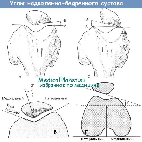 Надколенно-бедренного сустава малахов плюс о боли левого тазобедренного сустава