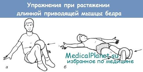 Упражнения при растяжении длинной приводящей мышцы бедра
