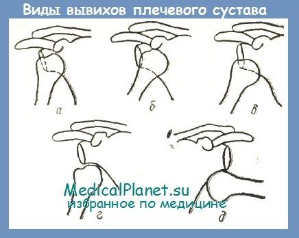 Вывих плечевого сустава классификация грязь для суставов как называется