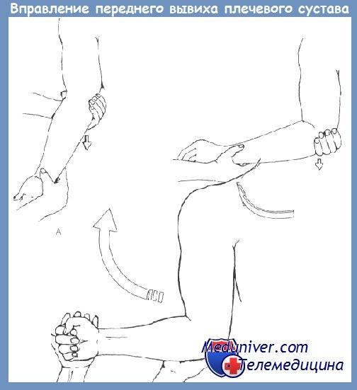 как вправить сустав в колене
