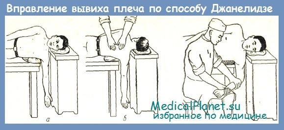 Как вправить стопу самостоятельно - Simvol-goroda.ru