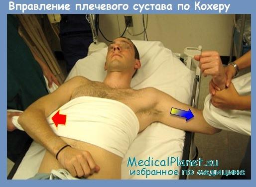 Вывих или растяжение плечевого сустава как лечить