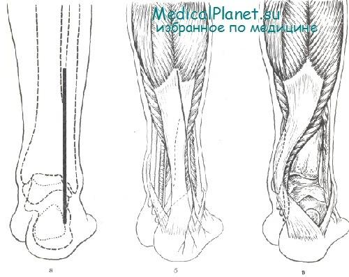 Техника артротомии коленного сустава упражнения для гибкости подколенных суставов