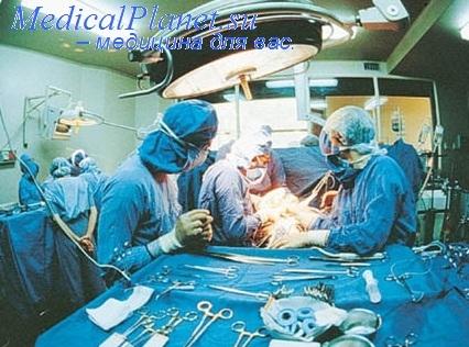 Рекомендации после холецистэктомии Хирургия