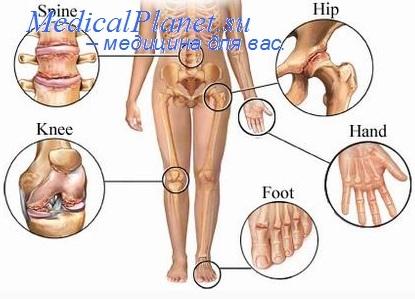 http://medicalplanet.su/reabilitatia/Img/308.jpg