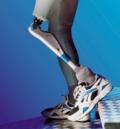 реабилитация после ампутации конечности