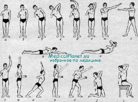 Гимнастика лечение сколиоза